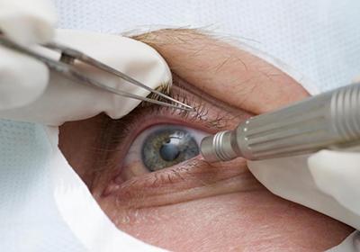 Глазное дно симптомы давления